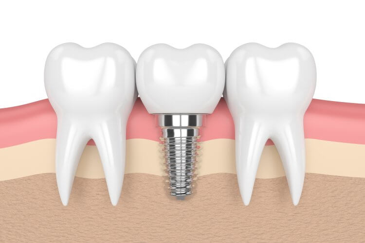 Image of Dental Implant Bewteen Teeth