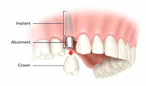 Image of Single Dental Implant